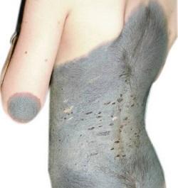 родимое пятно на теле